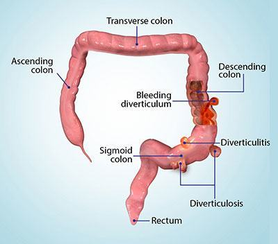 Diverticulitis- Mr Abhay Chopada
