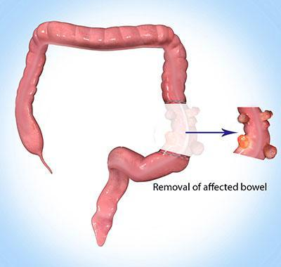 Removal-of-the-affected-colon- Dr. Abhay Chopada